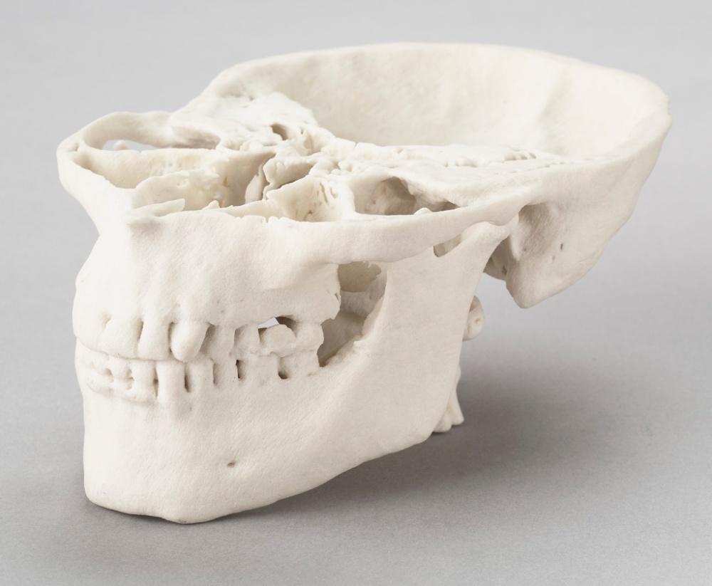 ภาพหัวกะโหลกนี้สร้างมาจากเทคนิค 3D Printing เห็นได้ชัดว่าการนำมาใช้ด้านการแพทย์คงไม่ไกลเกินเอื้อม